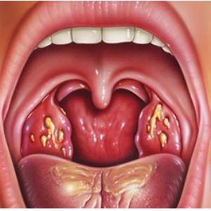 Лечение миомы эма отзывы