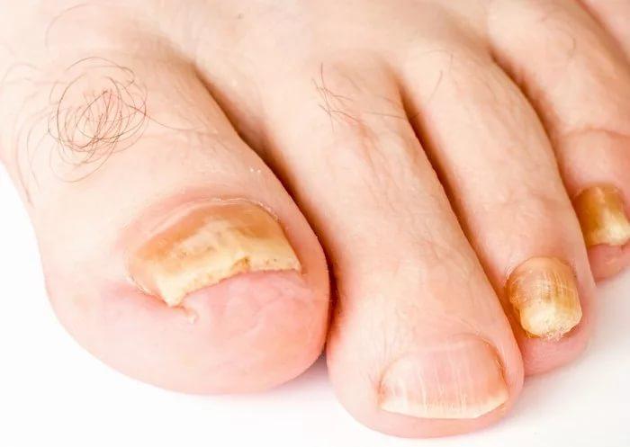 Виды грибка на ногах ногтей