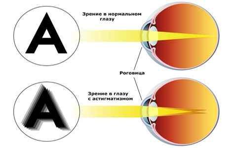 Операции на зрение