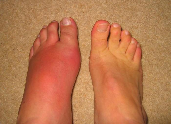 Лечение подагры коленного сустава в домашних условиях